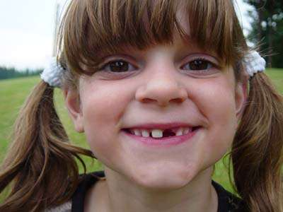 a young girl with a missing tooth
